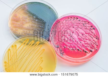 Bacterial Colonies Culture On  Differential And Selective Media