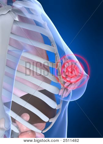 Painful Breast