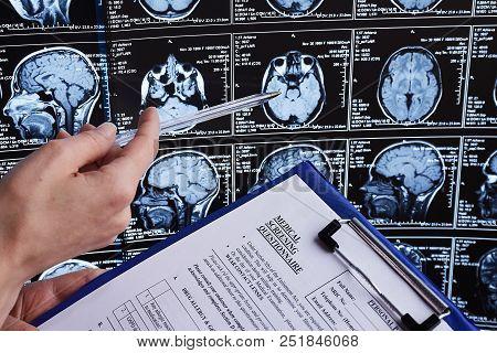 Magnetic Resonance Scan Of The Brain. Mri Head Scan