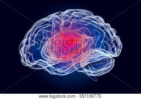Brain Disease Concept, X-ray Hologram. 3d Rendering