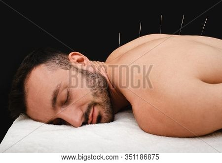 Male During Acupuncture Procedure. Spinal Acupuncture For Intervertebral Hernias And Protrusions. Ac
