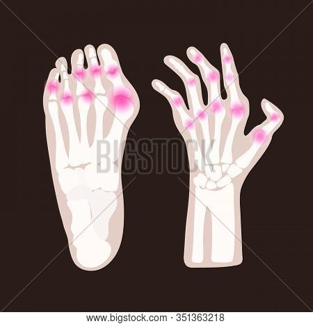 Hand Leg Artritis Rheumatoid Chronic Disease Medicine Education Diagram Vector Scheme Human Hand Dra