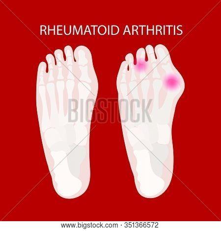 Rheumatoid Leg Artritis Chronic Disease Illness Medicine Education Diagram Vector Scheme Human Hand
