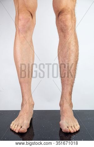 Crop Man With Shaved And Hairy Legs