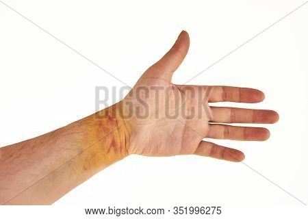 Male Wrist With Yellow And Purple Bruising, Isolated On White Background. Male Hand Showing Signs Of