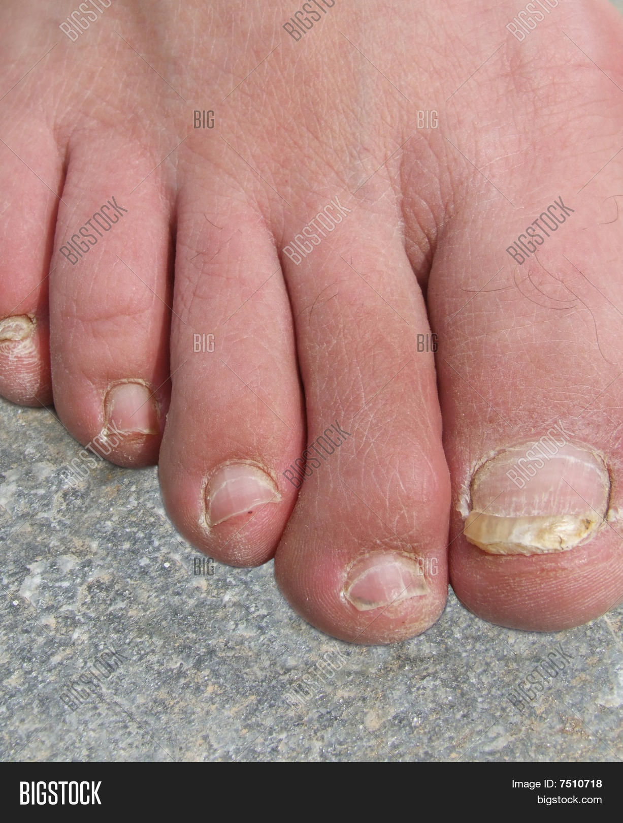 Ugly Toenails Image & Photo (Free Trial) | Bigstock
