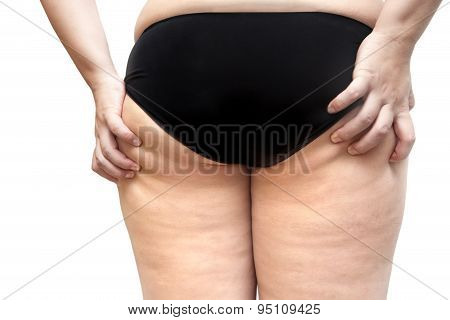 Buttock And Leg Cellulite Problem Young fat Woman Stretch Marks