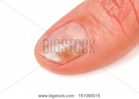 one finger of the hand with a fungus on the nails isolated on white background.