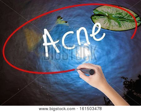 Woman Hand Writing Acne With Marker Over Transparent Board