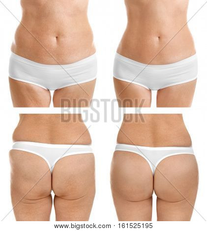 Mature woman body before and after liposuction. Plastic surgery concept. poster