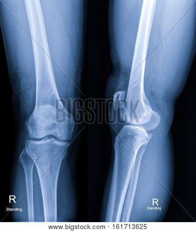X-rays of the knee for a doctor examination,mammogram
