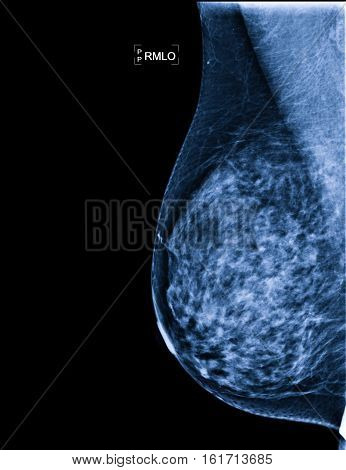 X-rays of the Breast Cancer for a doctor examination,mammogram