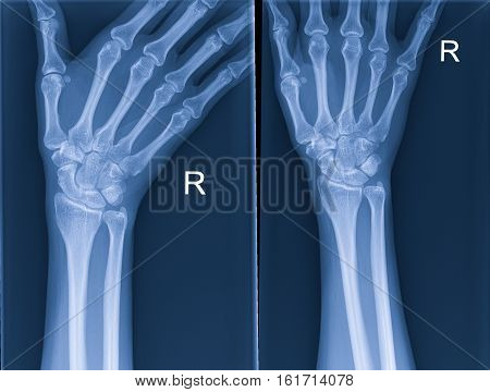 X-rays of the hand for a doctor examination.