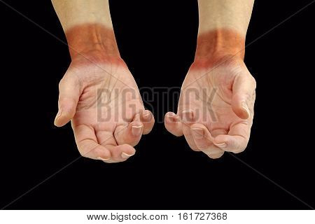 Repetitive Strain Injury Common Pain Areas - wrist and hand palms face up showing painful looking redness across wrist area symbolizing the pain of RSI on a black background