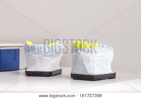 Technical shots of model on a dental prothetic laboratory