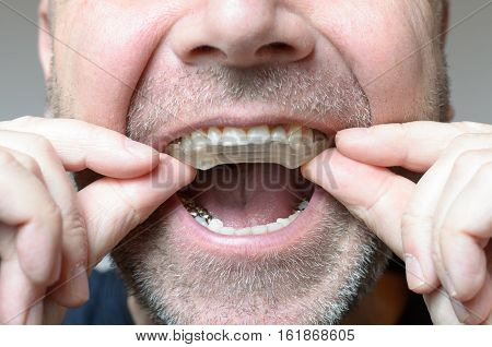 Man Placing A Bite Plate In His Mouth