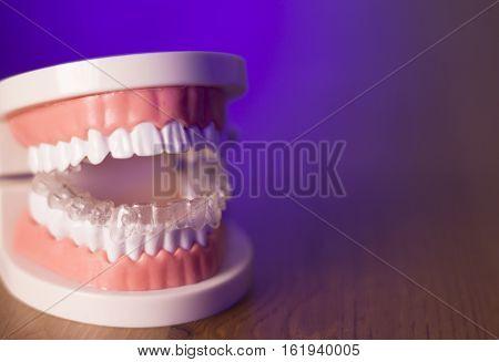 Denture With Transparent Orthodontics