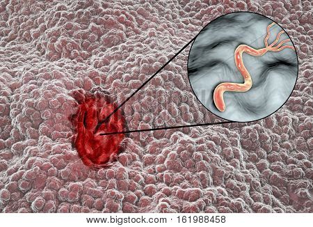 Gastric ulcer. Mucosa of stomach with peptic ulcer and close-up view of bacterium Helicobacter pylori which causes ulcers. 3D illustration