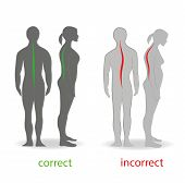 Correct alignment of human body in standing posture for good personality and healthy of spine and bone. Health care and medical illustration poster