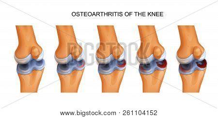 Vector Illustration Of Osteoarthritis Of The Knee