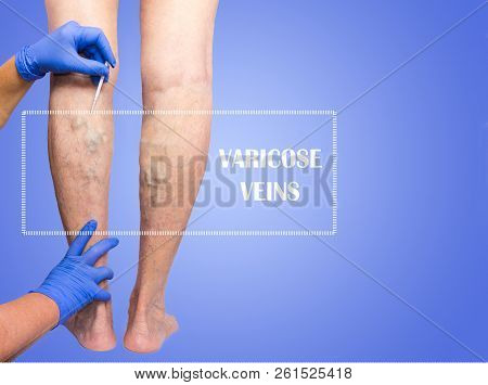 Lower limb vascular examination because suspect of venous insufficiency. The female legs on blue background. Senior woman poster