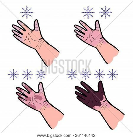 Set Of Four Hand Drawings On A White Background Stage Of Frostbite