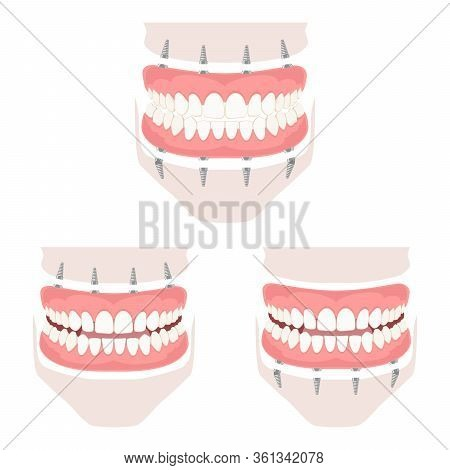 Removable Denture Of The Upper And Lower Jaw.