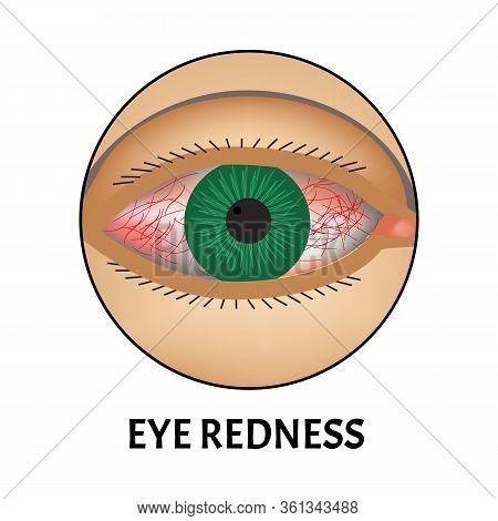Redness Of The Eyes. Symptom Of Conjunctivitis, Allergies, Inflammation Of The Eyes. Eye Redness Ico