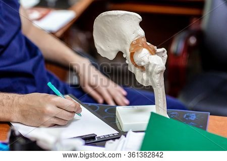 Doctor Shows To Patient Place Of Hip Joint In Artificial Semi-anatomical Model Of Pelvis And Femur.