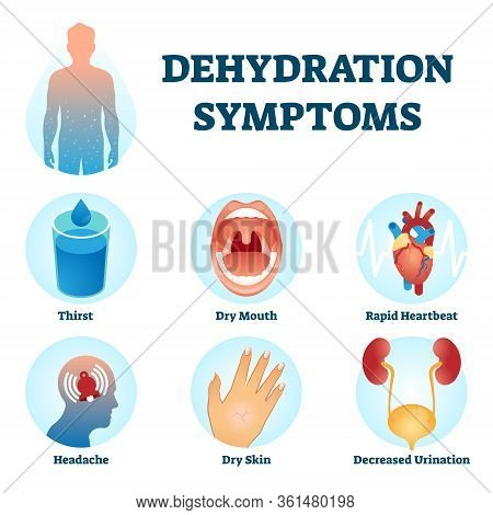 Dehydration Symptoms Vector Illustration. Educational Water Deficit Diagnosis Scheme With Symptoms C