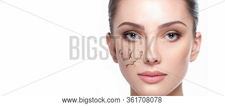 Dry Skin With Cracked , Dehydrated Face. Skin Need Treatment And Hydration, A Portrait Of A Woman On