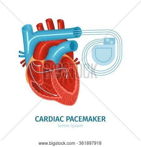 Flat Composition With Heart And Cardiac Pacemaker On White Background Vector Illustration