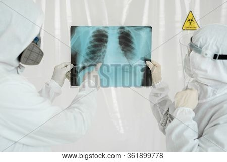 Doctors Epidemiologists Examine X-ray For Pneumonia Of A Covid-19 Patient. Coronavirus Concept