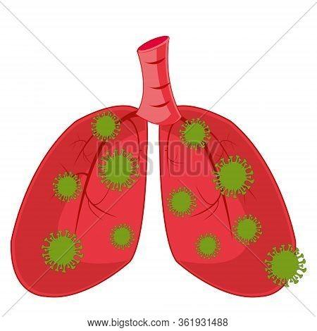 Internal Organs Of The Person Light Struck Infection Coronavirus