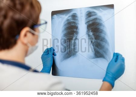A Female Doctor Examines An X-ray Of A Patient S Lung Infected With Covid-19 Coronavirus, Pneumonia.