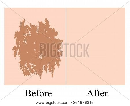 Pigmentation On The Skin Background. A Pigmented Spot On The Skin Of The Face. Before And After Trea