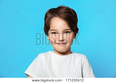 Little boy with red pimples on blue background. Chicken pox concept