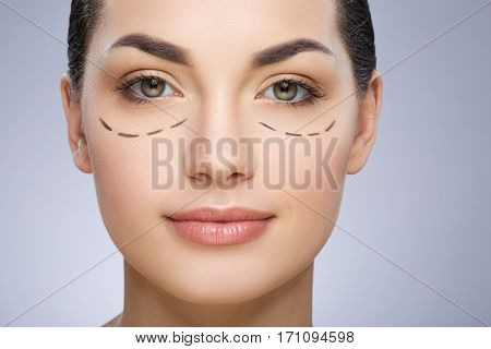 Dashed lines under girl's eyes. Beautiful girl smiling. Plastic surgery, beauty portrait, closeup