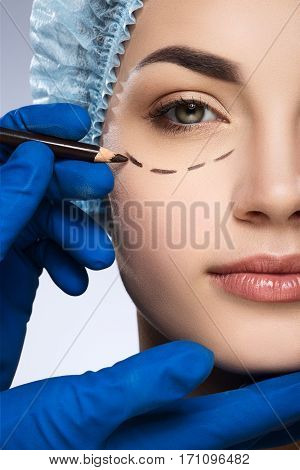 Plastic surgeon drawing dashed line under eye of girl. Hands in blue glove holding pencil. Girl in protective cap. Plastic surgery, beauty portrait, half face, closeup
