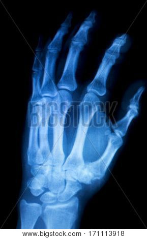 Hand Fingers Inury Xray Scan