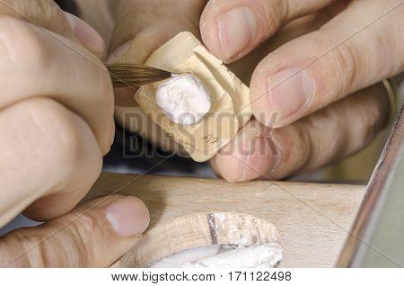 Dental Technician Putting A Ceramic Tooth In A Dental Cast Model.