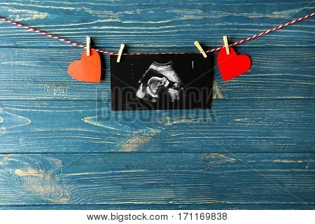 Ultrasound scan of baby on rope against wooden background