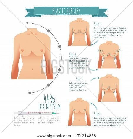 Plastic surgery illustrations. Breast augmentation, breast lift for your design