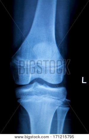 Orthopedics Knee Injury Xray Scan