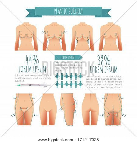 Plastic surgery illustrations. breast lift, abdominoplasty, lipofilling for your design