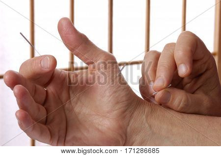 Acupuncture Hands and Fingers Needles inserted in Acupoints