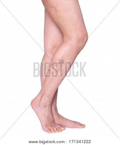 Varicose veins in the legs. Woman legs isolated on white