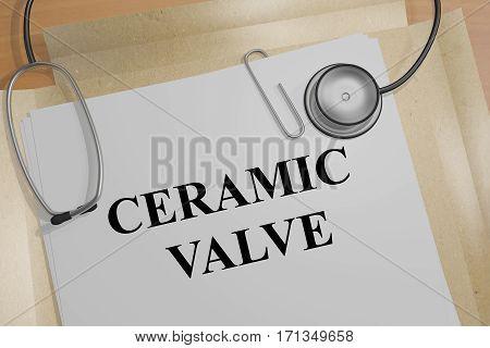 Ceramic Valve - Medical Concept