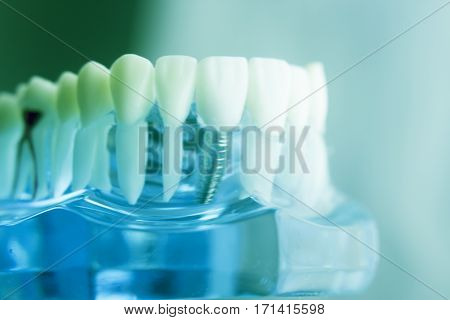 Dental Tooth Root Model