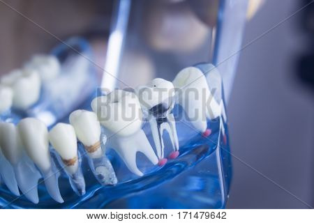 Dental Teeth Plaque Model